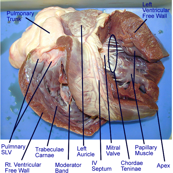 Heart   Gross Anatomy