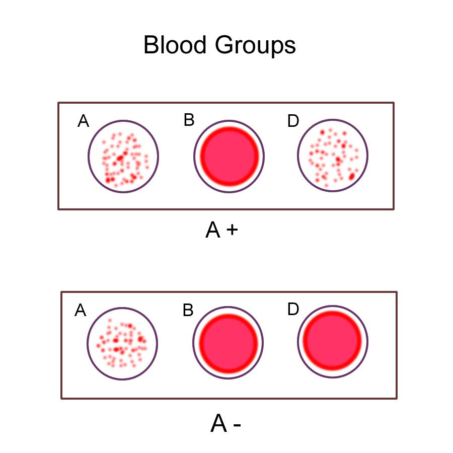 Biology 2404 ap basics abod blood type a pooptronica
