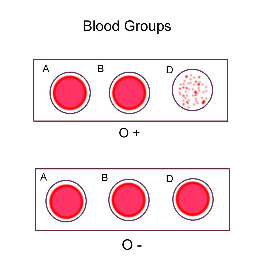 Biology 2404 ap basics abod blood type o pooptronica